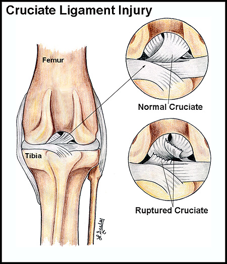 Cruciate Ligament Injury