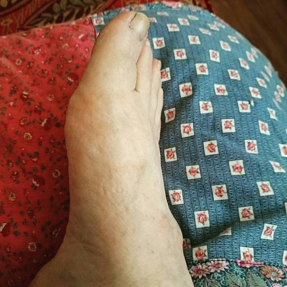 Foot Rest 3